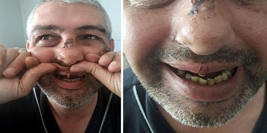 Bu Kadarına Pes! Sigara ve bisikletini vermeyince dişlerini döktüler...