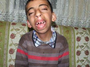 Yozgat'ta 12 Yaşındaki Muhammet Ameliyat İçin Yardım Bekliyor