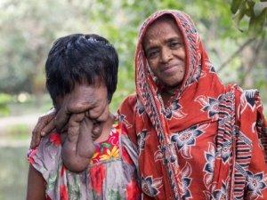 Yüzü Olmayan Genç Kız Durumunu Kabullendi