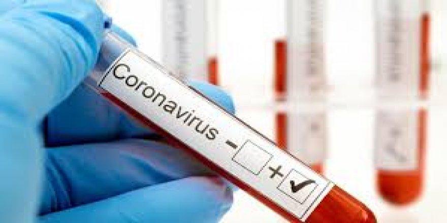 Koronavirüs testi pozitif çıktı, Nazilli'de tedaviye alındı